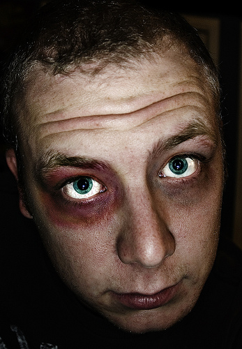 28 Punches That Cause Black Eyes in Business